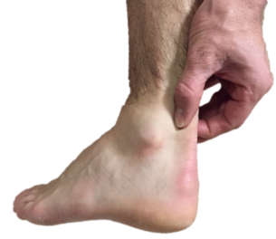 Podiatrists at Northern Foot Clinic frequently treat people with Achilles tendon pain