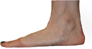 Flat feet are frequently managed by podiatrists at Northern Foot Clinic